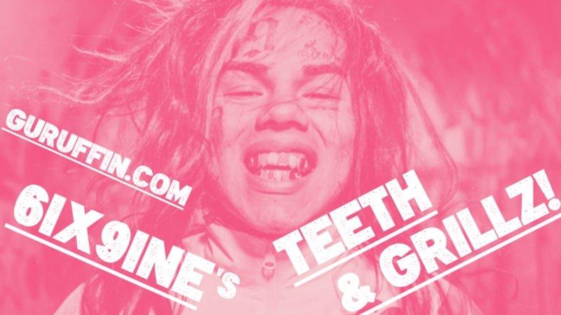 "6ix9ineの歯がレインボーな驚きの理由…""巨額の歯科手術""の秘密!🌈"